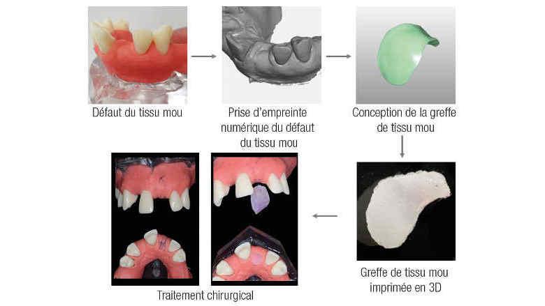 Approche de l'impression 3D en dentisterie