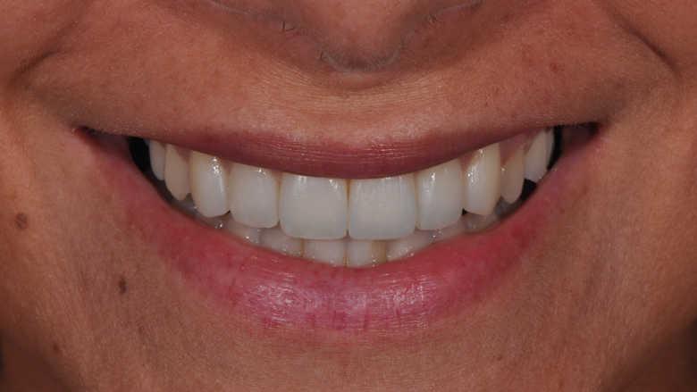 Questions de forme : modifications conservatrices des contours et contacts dentaires