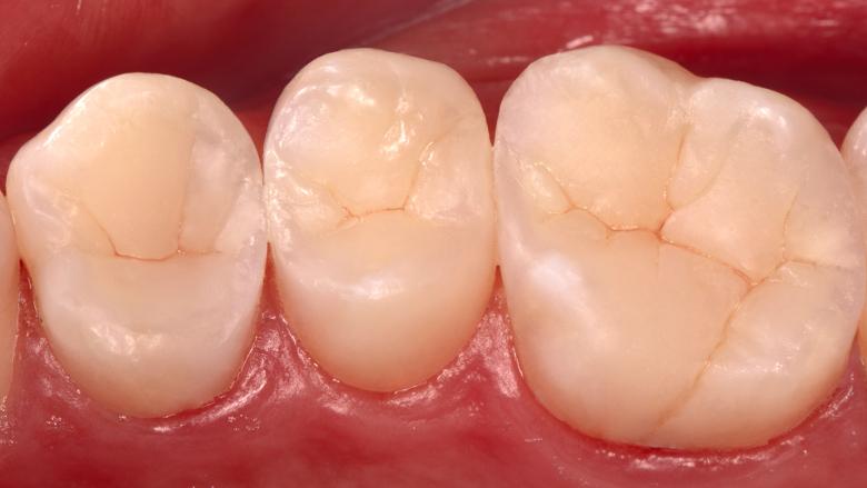 Résultats du Concours international de cas cliniques 2020/2021 de Dentsply Sirona